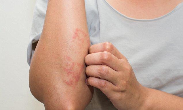 मानसून में फंगल इंफेक्शन से हो गए हैं परेशान? ये हैं 5 रामबाण इलाज