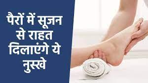 पैरों की सूजन से निजात पाने के घरेलू उपाय